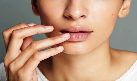 7 درمان برای خشکی  و تـــرک  لــب