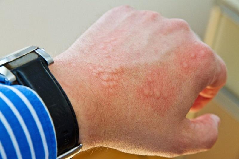 با نشانه های  کبد چرب، شایع ترین بیماری کبدی آشنا شوید