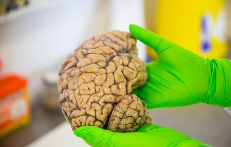 نشانه ای که می گویند مغزتان زودتر از خودتان پیر شده