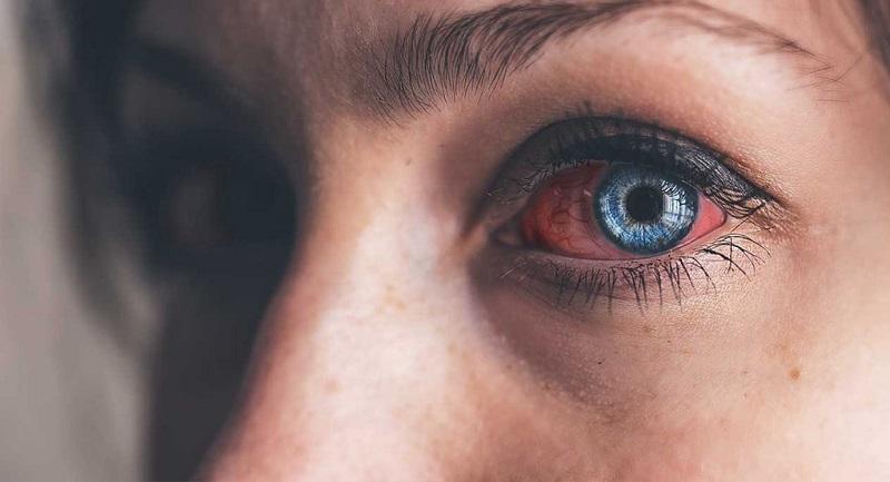 عفونتي كه با آرايش چشم مي آيد