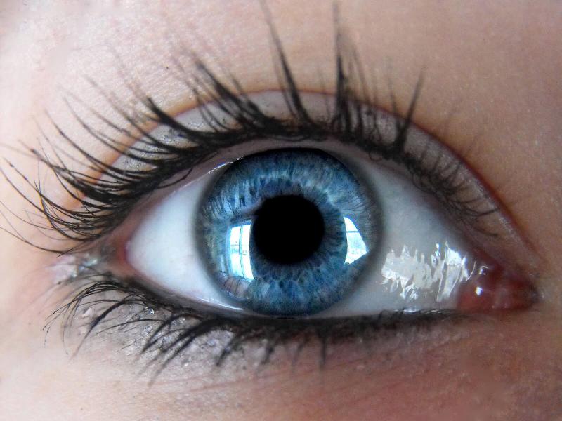 همه چیز درباره حساسیت های چشمی+درمان