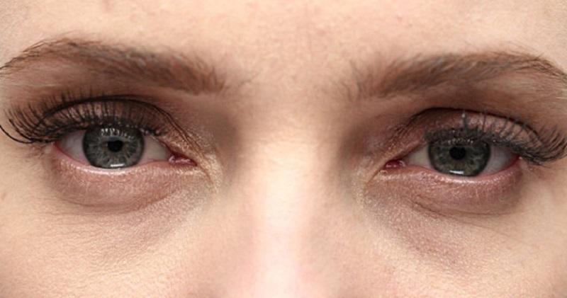 بيماريهايي كه نشانههاي آن در چشمها ظاهر ميشود + اينفوگرافي