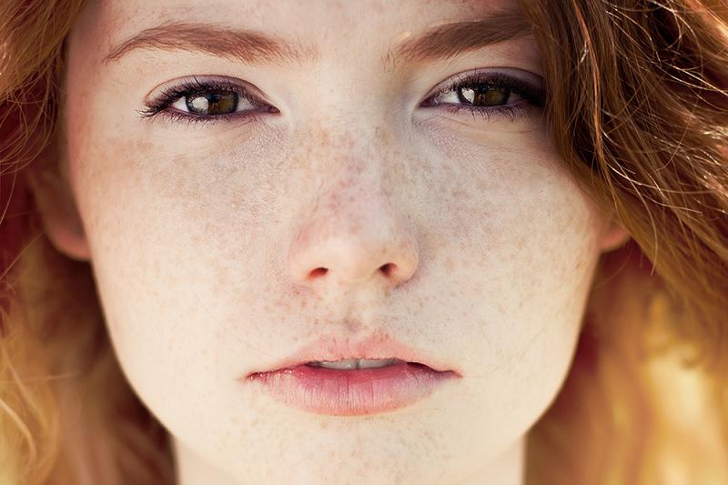 هفت نسخه معجزه گر برای ناپدید شدن کک و مک ها