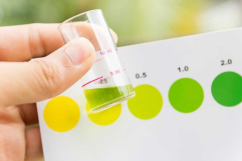 رنگ و بو ادرار شما نشان دهنده چیست؟