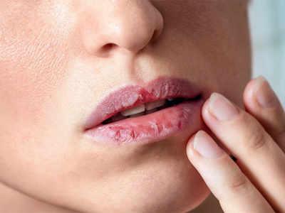 تمام درمانهای خانگی برای خشکی دهان