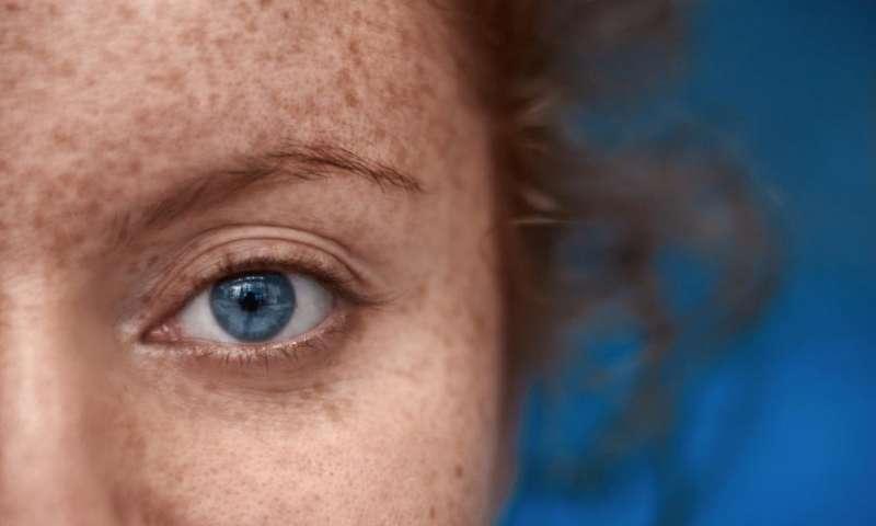 مهم ترین دلایل عوض شدن رنگ چشم