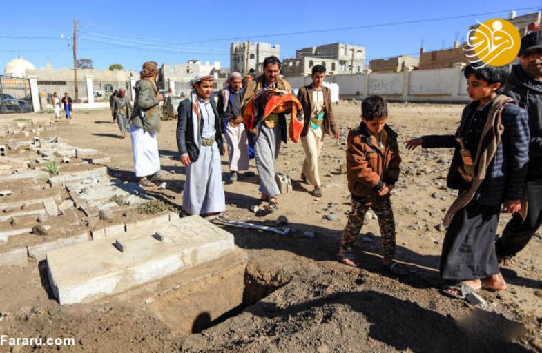 خواب ابدی دوقلوهای به هم چسبیده یمنی + تصاویر