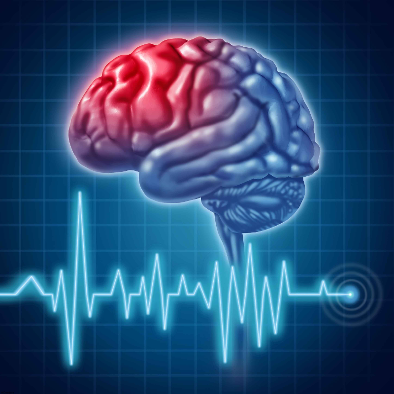 سردرد زنگ خطری برای  سکته مغزی