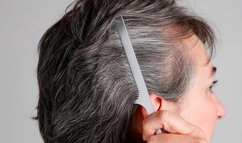 ۳ عامل سفید شدن مو