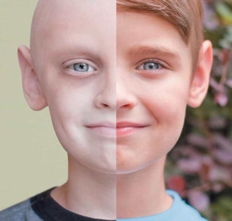 شایعترین سرطانها در کودکان را بشناسید