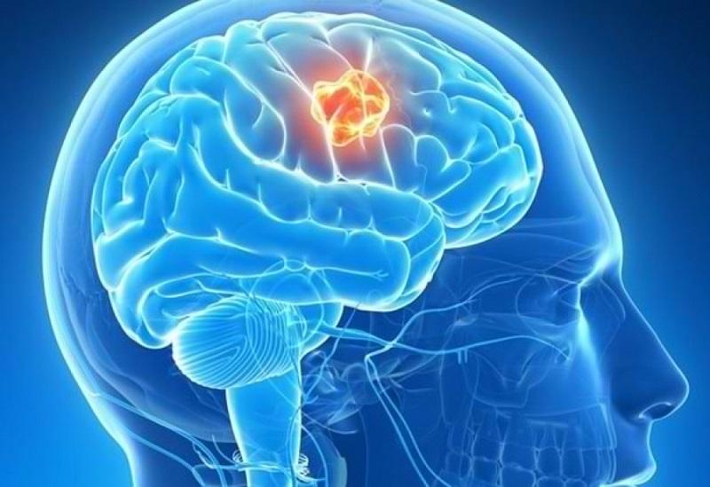 ۸ نشانه خاموش تومور مغزی