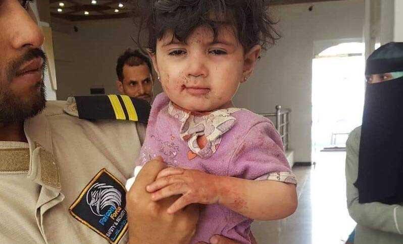 تنها بازمانده یک جنایت هولناک در صنعا! + عکس