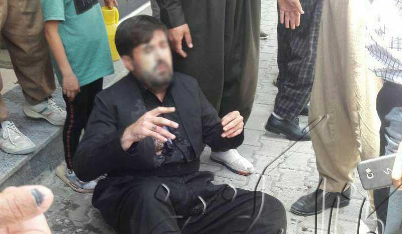اسیدپاشی دلخراش در پیرانشهر + عکس