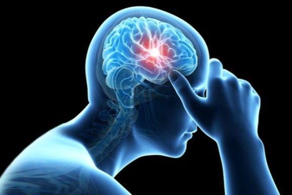 تشخیص سریع سکته مغزی