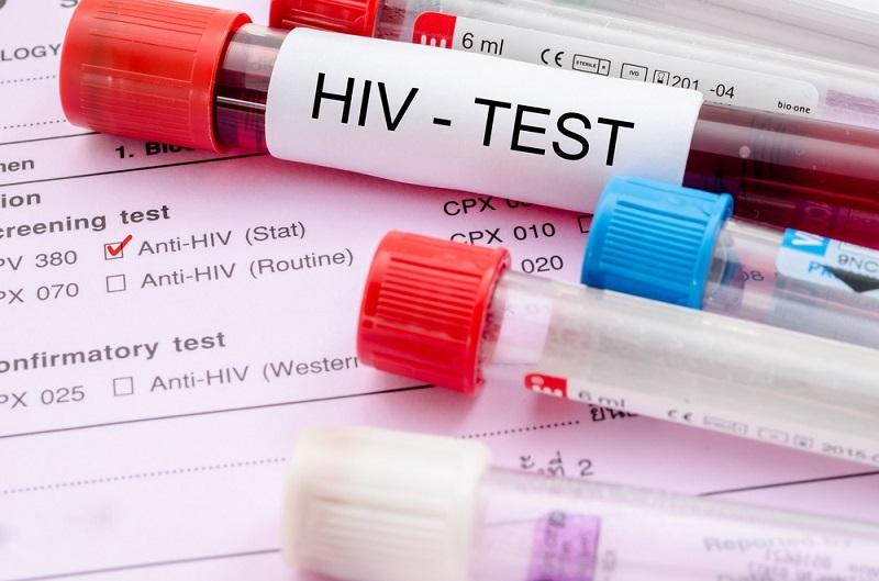 آشنایی با خاصیت ضد HIV عصاره این دو گیاه