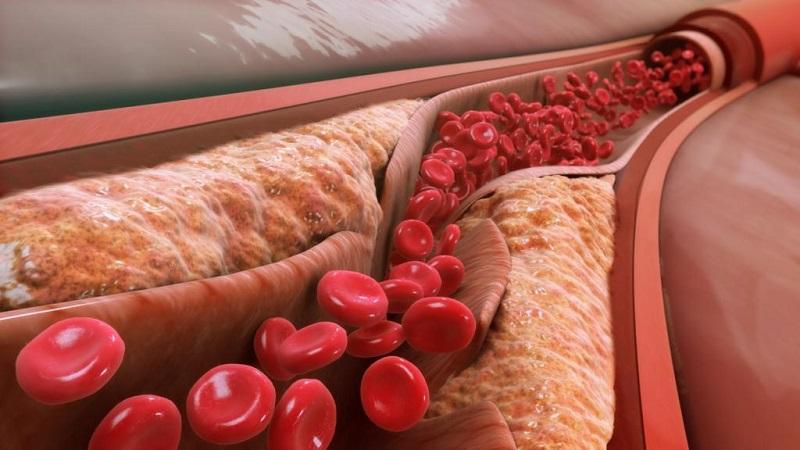 6 عامل بالا رفتن کلسترول خون