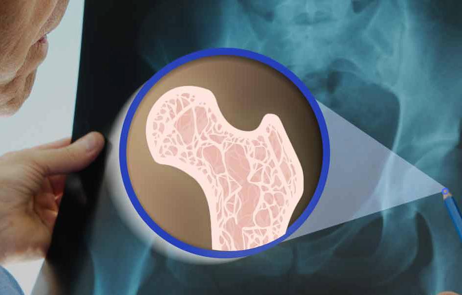 اگر این علائم را دارید دچار پوکی استخوان هستید
