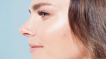 نکته بهداشتی: در خصوص  انحراف تیغه بینی