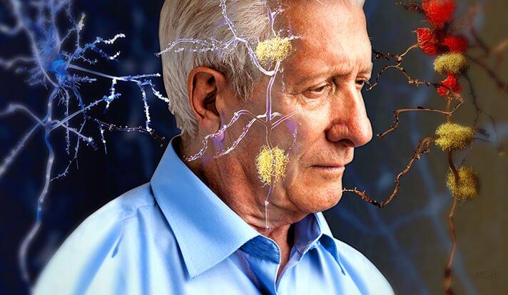 9 علامتی که نشان می دهد مغزتان زودتر از خودتان پیر شده است