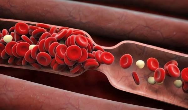 علائم لخته شدن خون در بدن چیست؟