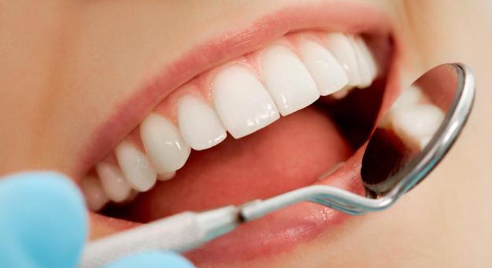 پیشگیری از پوسیدگی دندان