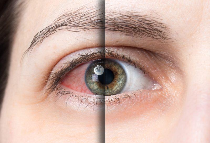 علت قرمزي چشم چيست + درمان