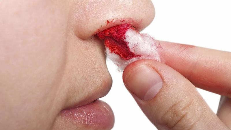 آيا بالاگرفتن سر هنگام خون دماغ شدن درست است؟