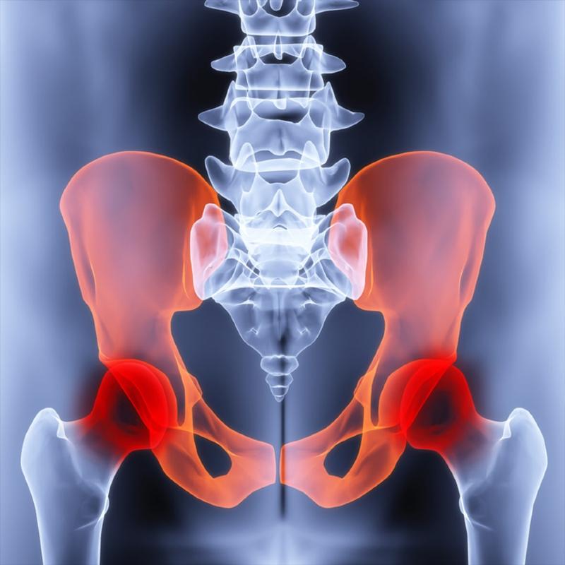 زنگ خطر آرتروز لگن با اين نشانهها به صدا در ميآيد