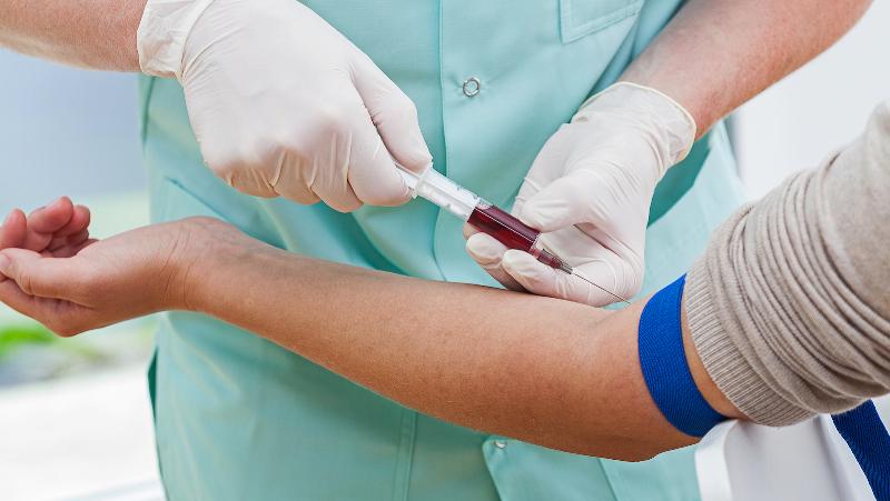 كدام آزمايشهاي خون بايد ناشتا باشيم؟