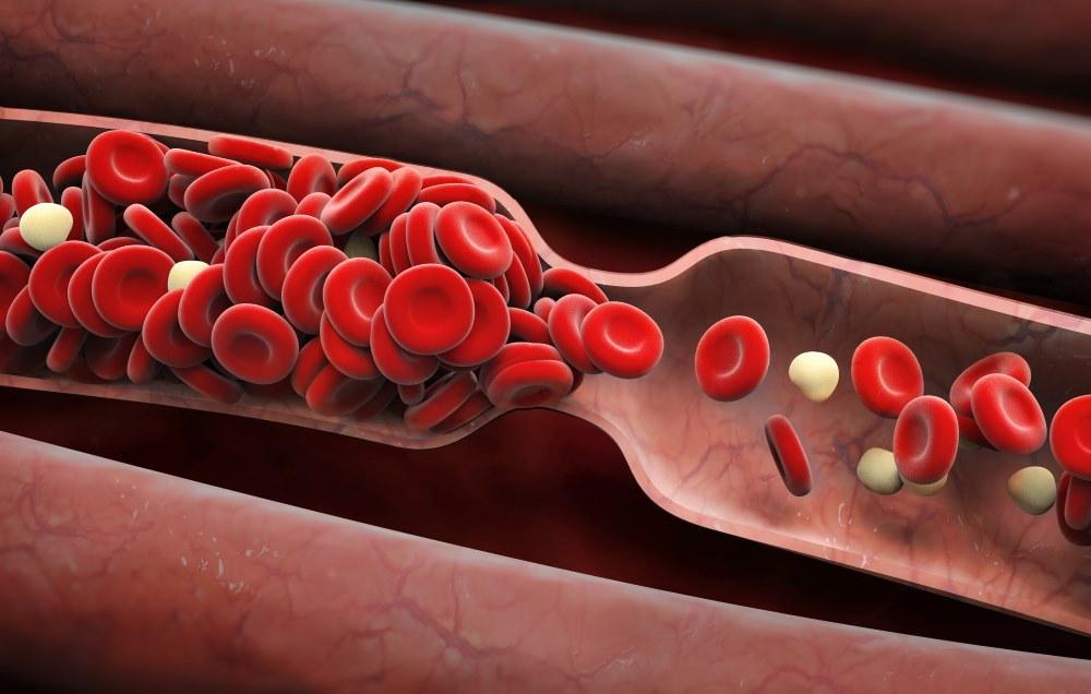 رسوب و لخته خون را با نسخه طب سنتی از بین ببرید