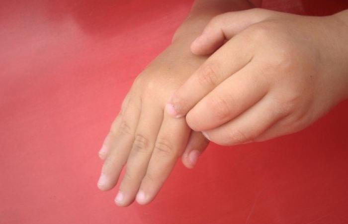 عارضهای پوستی که دانشآموزان را درگیر میکند