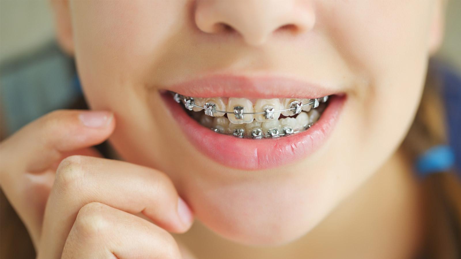 ارتودنسی با دندانهایتان چکار می کند؟