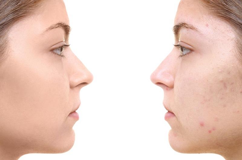 به آسانی جوشهای صورت را درمان کنید