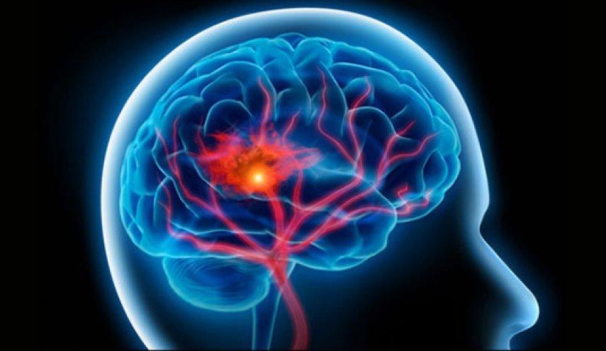 3 علامت سکته مغزی که شاید بسیاری از افراد نمی دانند