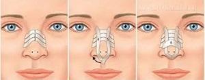 بعد از عمل بینی چگونه حمام کنیم؟