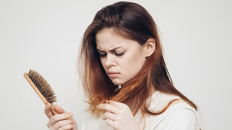 در مورد آلوپسی یا ریزش مو بیشتر بدانید