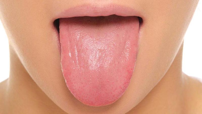 چه چیزی موجب بروز لکه های سفید و گرد روی زبان می شود؟