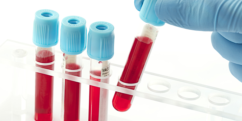 نقش خون و فرآورده های خونی در بهبود سرطان ها