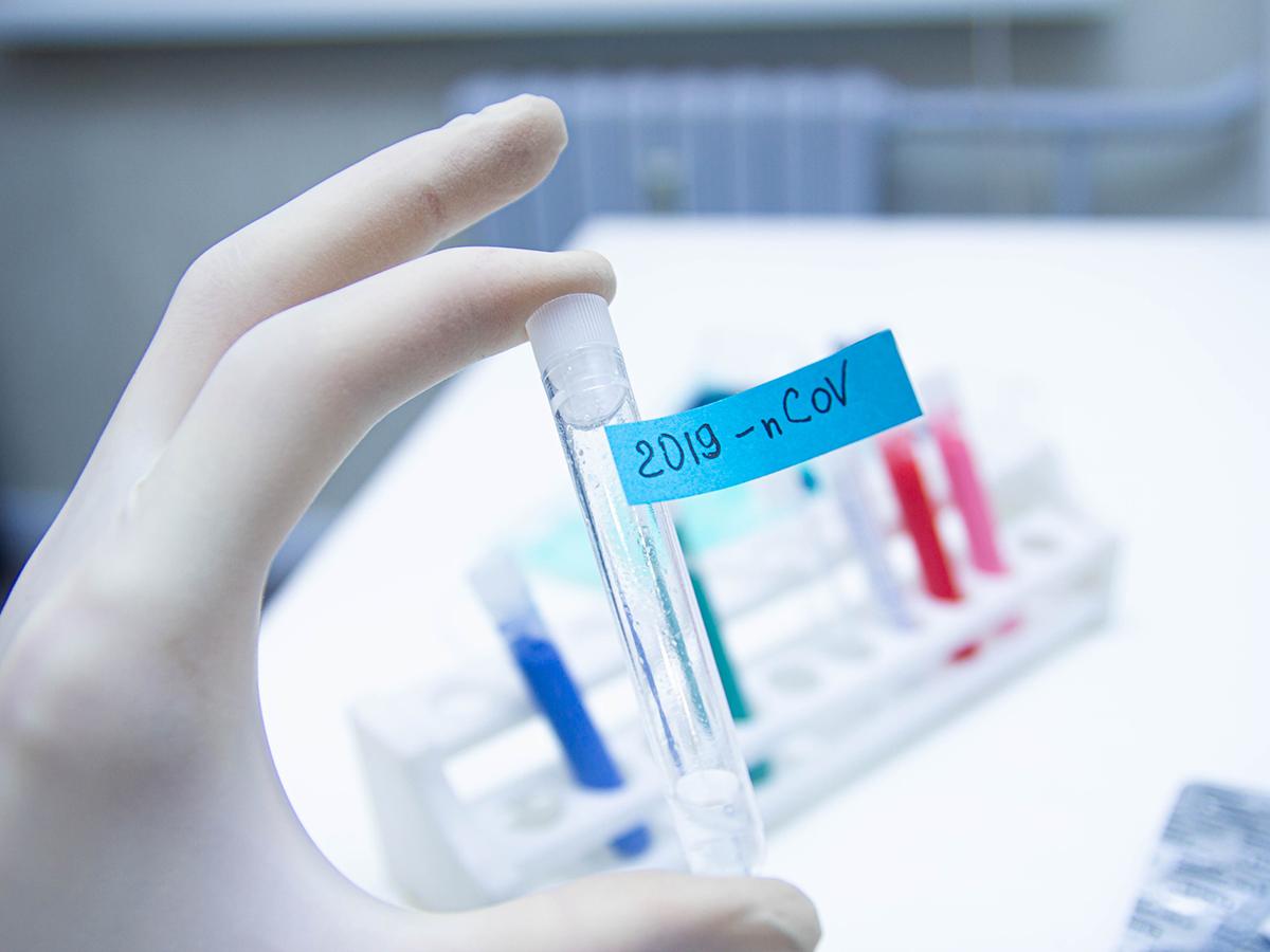 11 پیشنیاز برای مقابله با ویروس کرونا