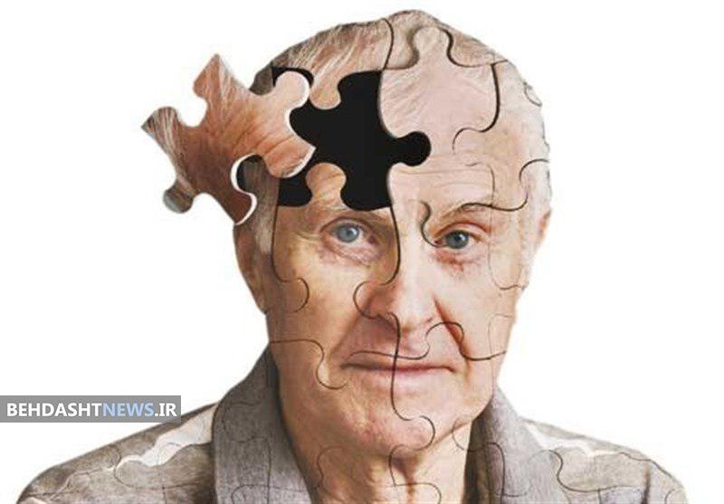 محققان ایتالیایی منشا بیماری آلزایمر را کشف کردند