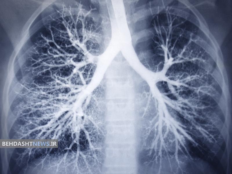مبارزه با تومورهای مقاوم با سیستم جدید دارو رسانی