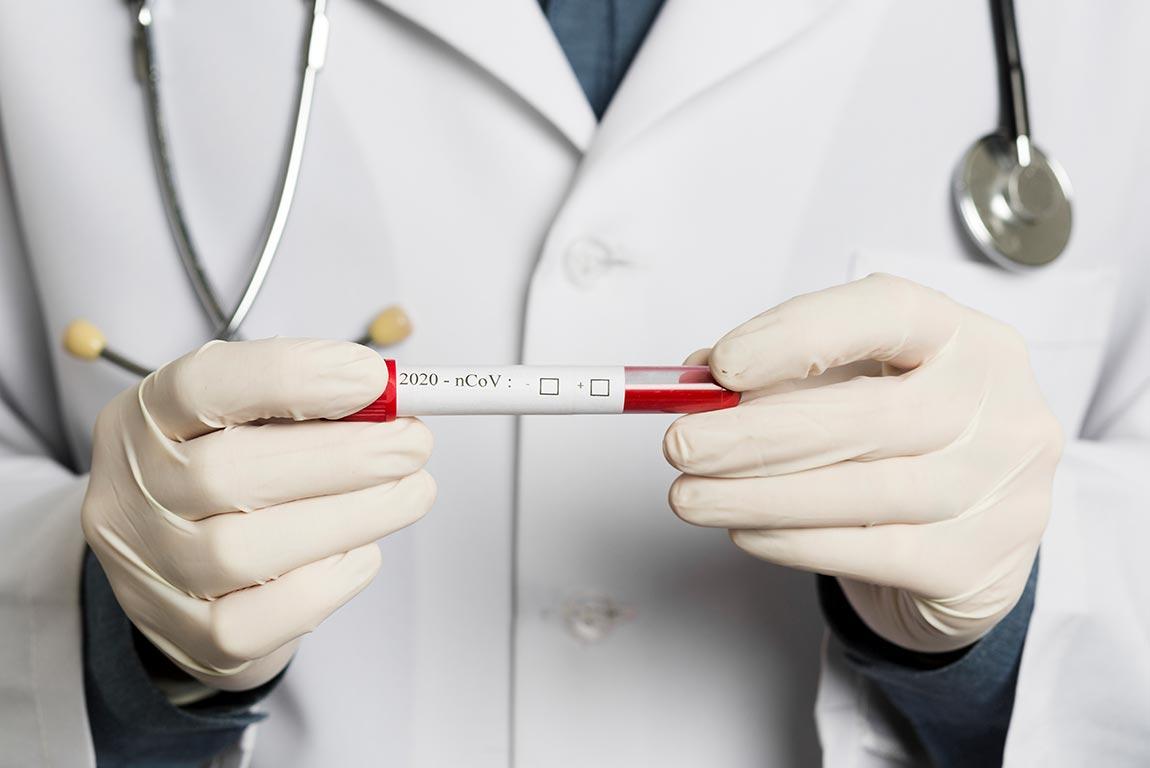 هنوز به قله کرونا نرسیده ایم/این ویروس درمان اختصاصی ندارد