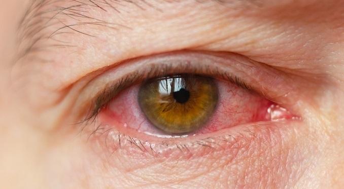 علت قرمزی چشم چیست + راه درمان