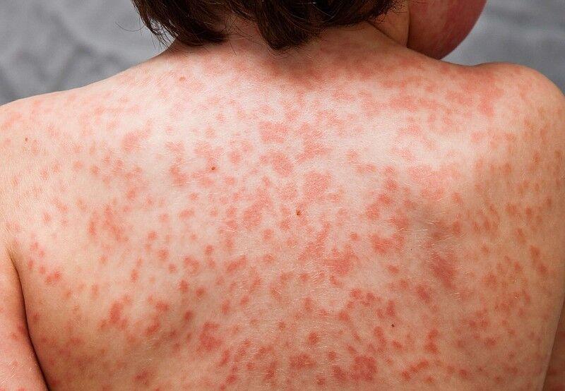 ارتباط سندروم التهابی کاوازاکی و ویروس کرونا؛ شواهد چه میگویند؟