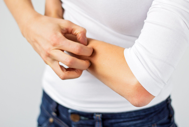 تظاهرات پوستی ارتباطی با شدت بیماری کرونا دارد؟