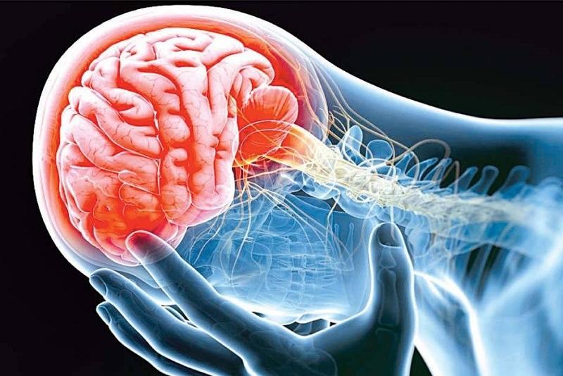 افزایش احتمال بروز سکته مغزی بر اثر کرونا در این افراد