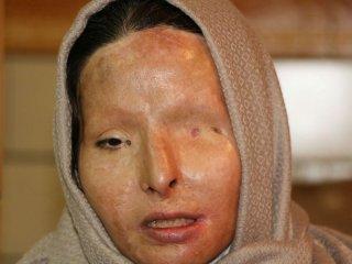 قربانیان اسیدپاشی برای اولین بار در ایران مدل لباس شدند + عکس