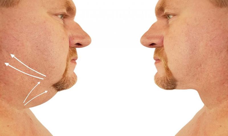 چاقی صورت: برای کاهش چربی صورت چه باید کرد؟