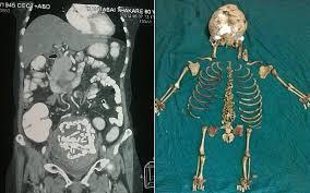زنی که ۳۶ سال یک جنین مرده را در شکم داشت! + عکس