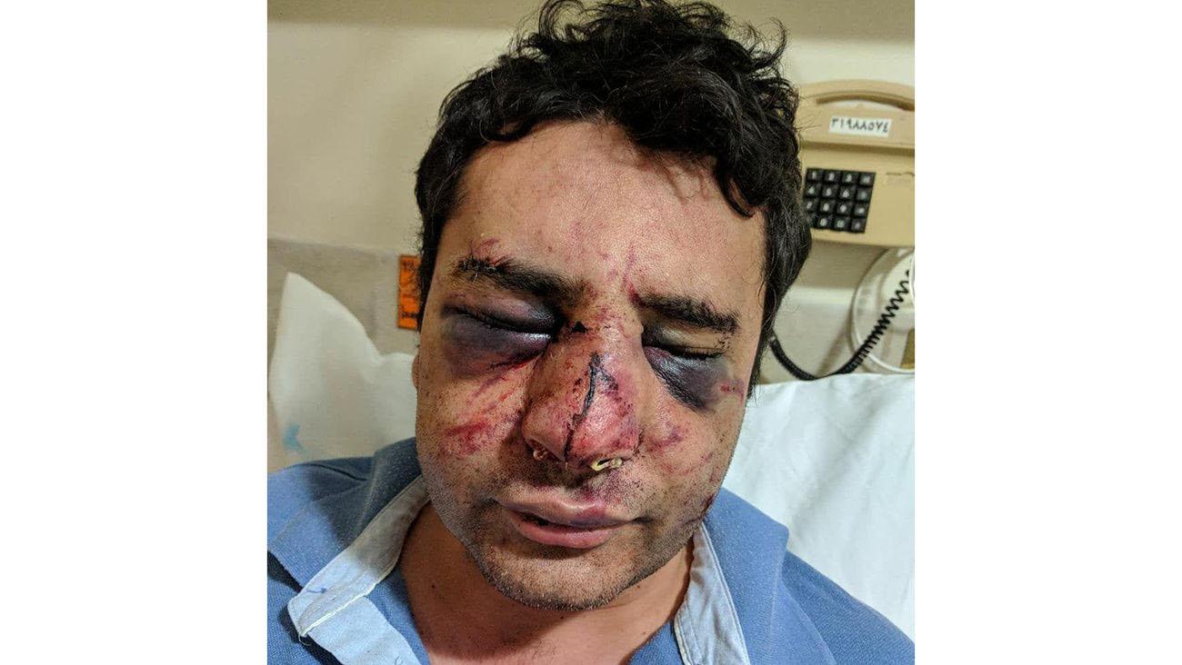 کور شدن دکتر پیرانشهری در حمله بستگان فوتی کرونایی + عکس